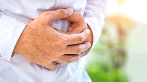About Crohn's Disease | NHGRI