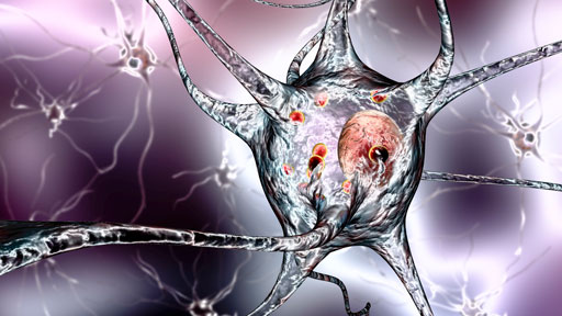 ​About Parkinson's Disease | NHGRI