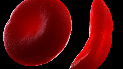 ​Sickle Cell Disease | NHGRI