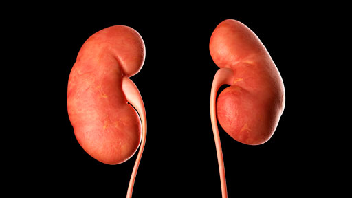 About Autosomal Dominant Polycystic Kidney Disease | NHGRI