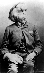 Joseph Merrick. High-resolution available at Wikipedia.