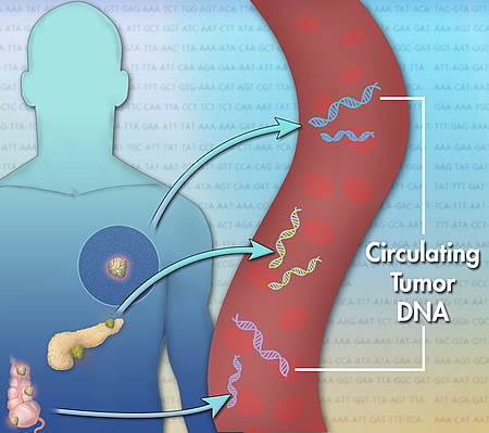 Circulating tumor DNA in the human vein