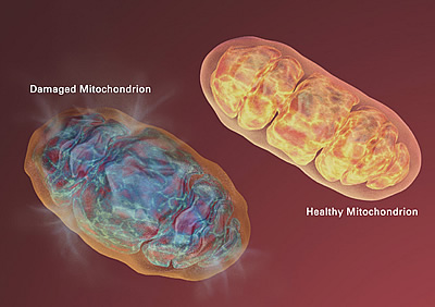Two Mitochondrions compared. Damaged on the left, healthy on the right.