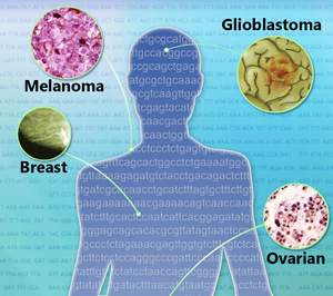 Different types of cancer illustrated on a human figure