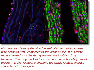 Photomicrographs showing the blood vessel of an untreated mouse with progeria (left) compared to the blood vessel of a similar mouse treated with the farnsyltransferase inhibitor drug tipifarnib. The drug blocked loss of smooth muscle cells (stained green) in blood vessels, preventing the cardiovascular disease characteristic of progeria.