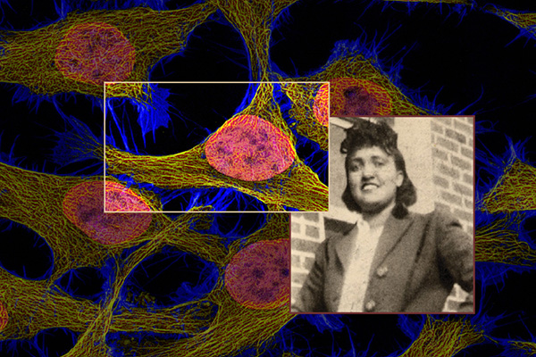 Henrietta Lacks and HeLa Cells