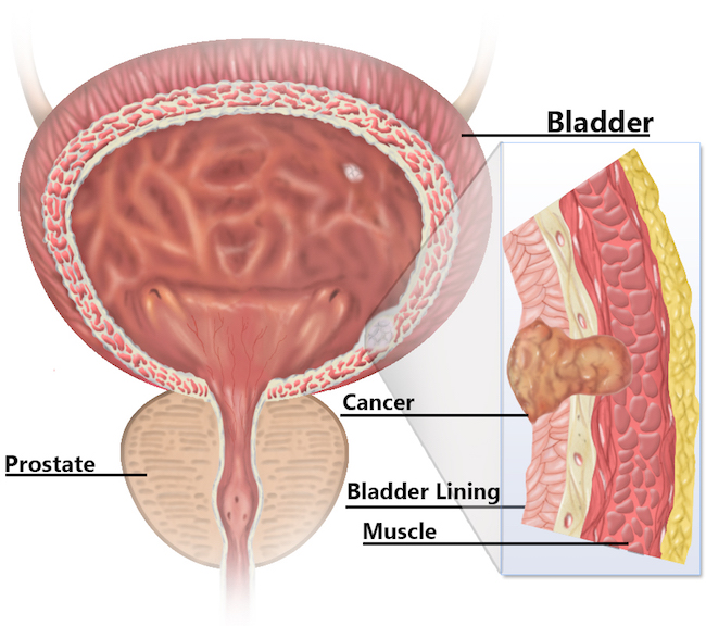 Bladder diagram