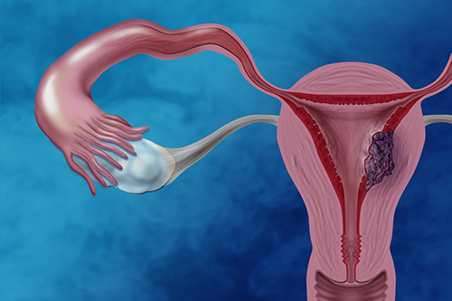 Endometrial cancer is the most commonly diagnosed gynecological cancer. Women with clear cell endometrial cancer, a rare type of endometrial cancer, generally have poorer clinical outcomes. Image Credit: Darryl Leja, NHGRI.