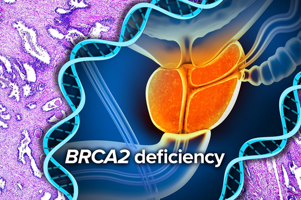 An illustration of B R C A 2 deficiency.